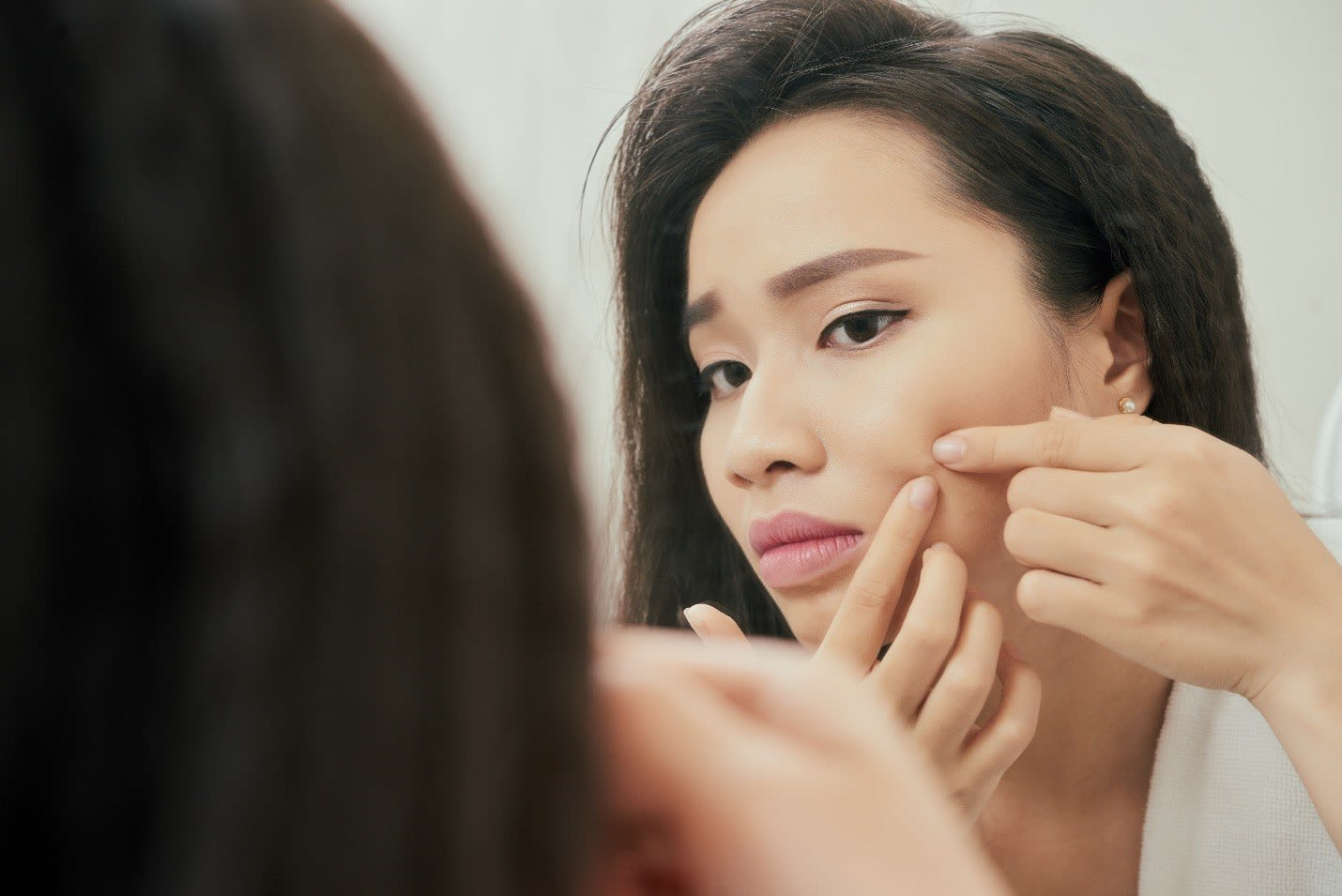 7 Reasons Why Pimple Gel is Better than Pimple Cream for Pimple & Acne Scar Removal